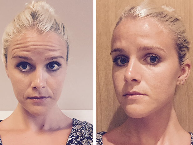 Immediately before my Botox appointment (left) and immediately after the needles went in (right)
