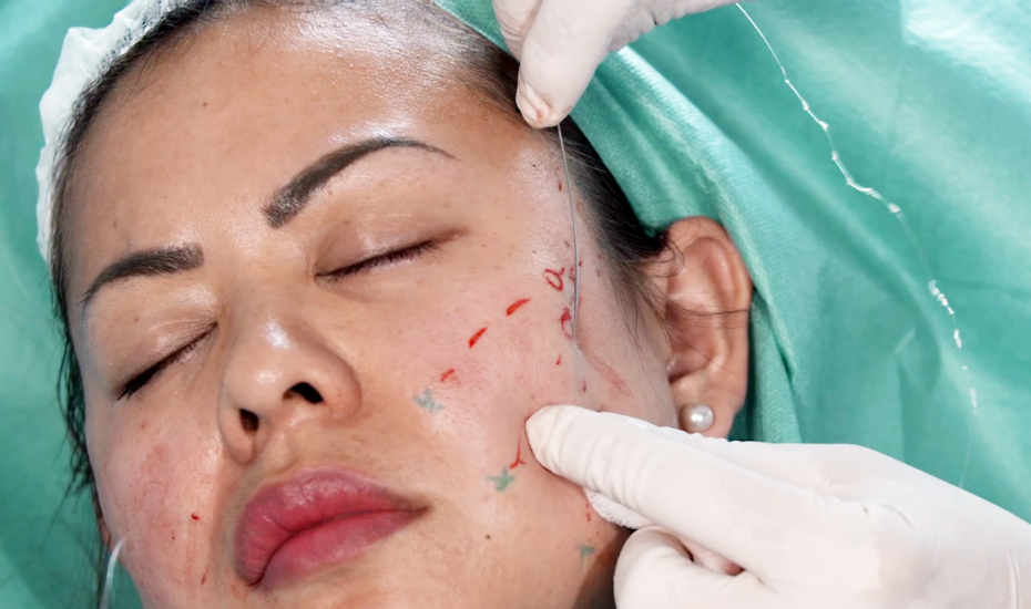 Beauty review: We tried the 'thread facelift' and the results are